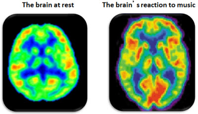 Brain at rest versus when listening to music