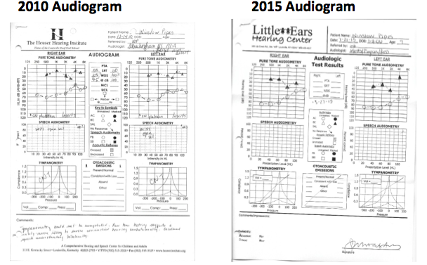 Winslow's audiogram