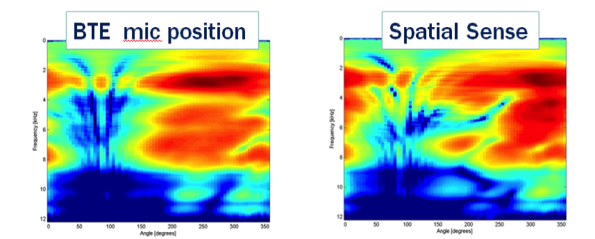 Spectral characteristics of the open ear are lost due to BTE/RIE microphone placement, and digitally applied with Spatial Sense