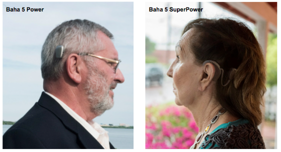 Baha Connect System