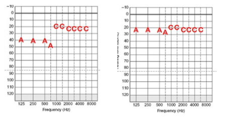 Substandard Acoustic Component thresholds as compared to a good sound field audiogram
