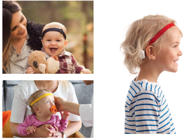 Examples of children wearing soft band bone conduction processors